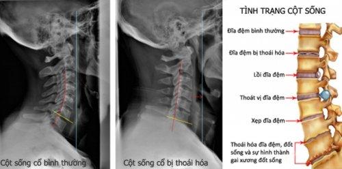 bi-thoai-hoa-dot-song-co.jpg